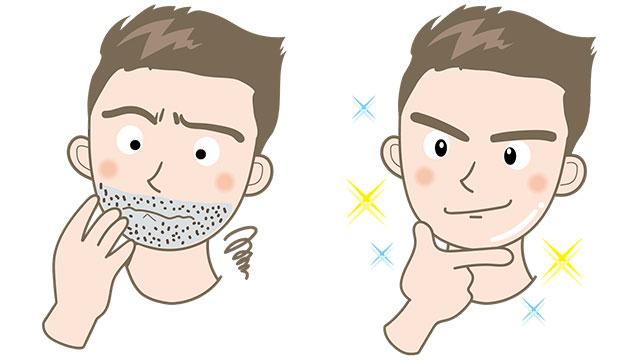 髭脱毛ビフォー&アフター